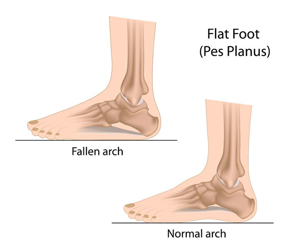 Flat Feet Texarkana
