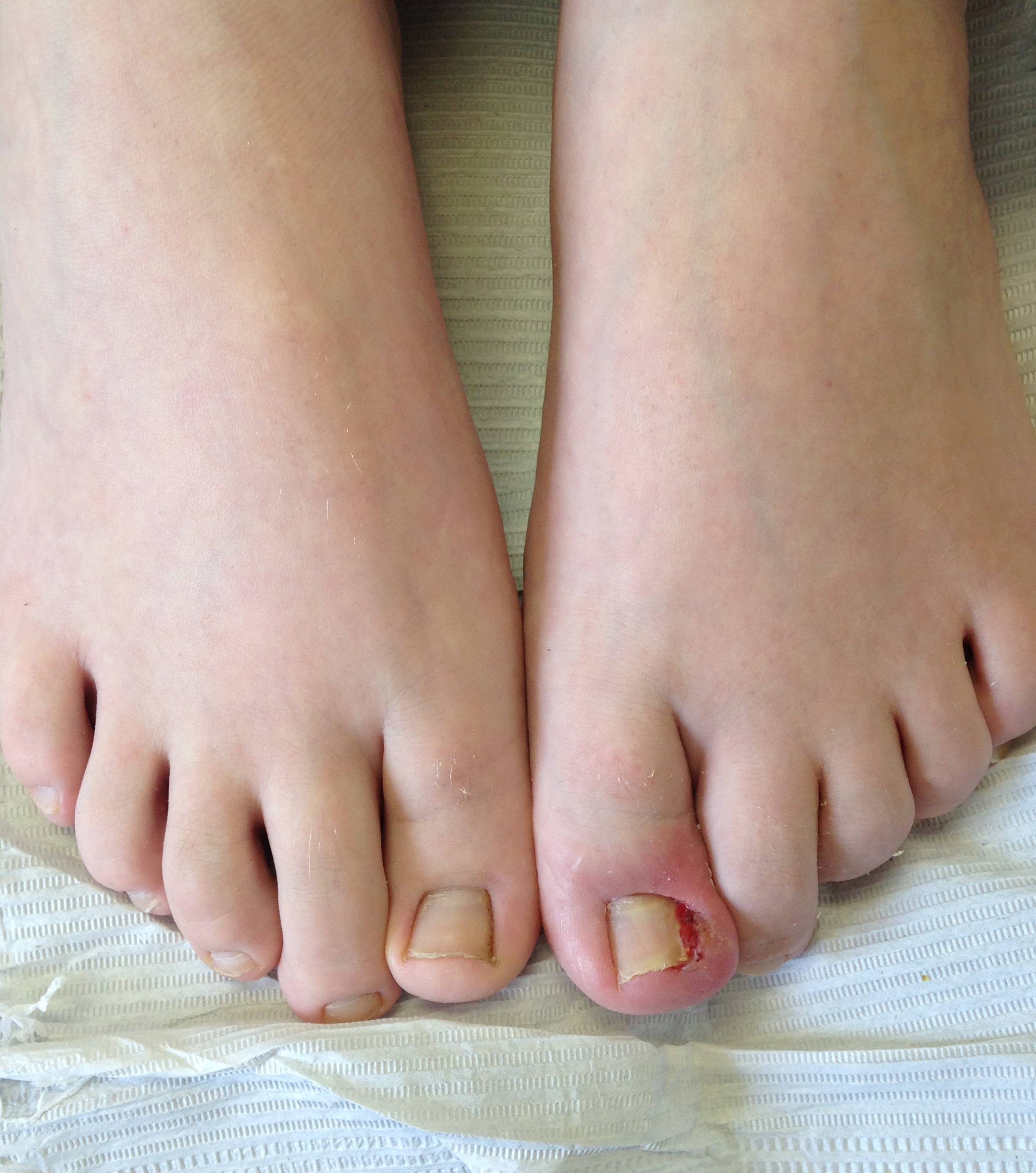 ingrown toenail and a simple procedure to alleviate